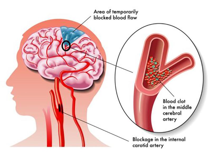 aneurisma-cerebrale:-cause,-sintomi-e-complicanze.