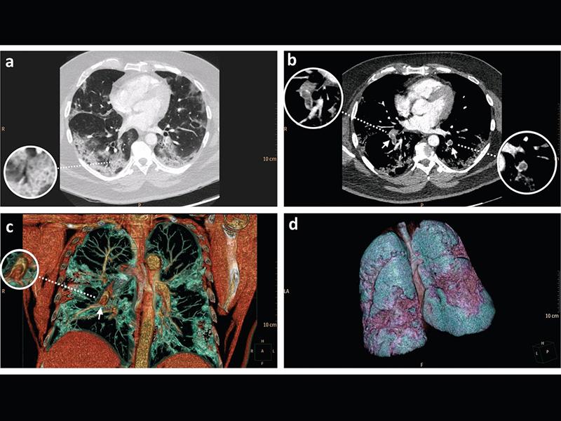 embolia-polmonare-e-coronavirus:-quale-nesso?