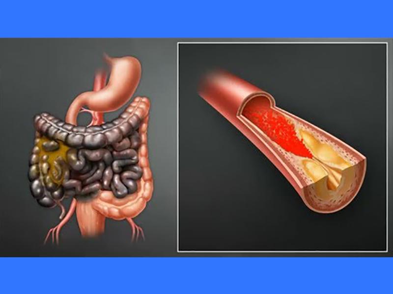 ischemia-intestinale:-cause,-segni,-sintomi-e-complicanze.