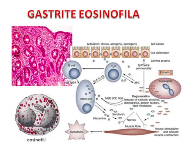 gastroenterite-eosinofila:-cause,-sintomi-e-trattamento.