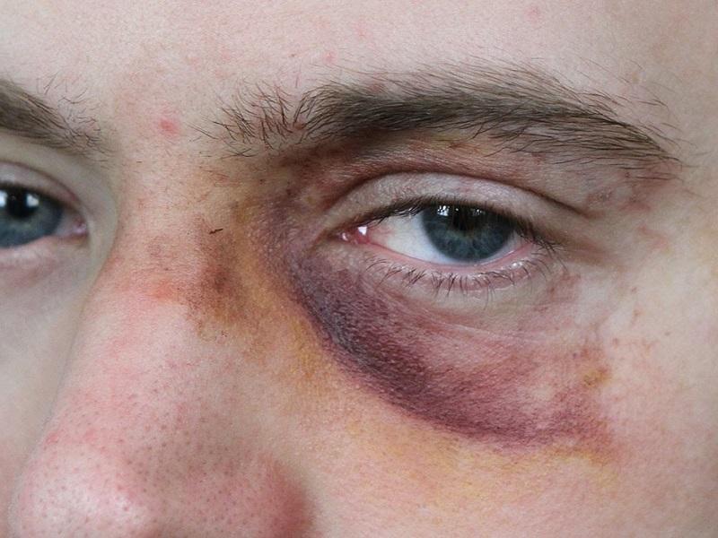 fials-chiede-osservatorio-dopo-aggressione-a-medici-e-infermieri.