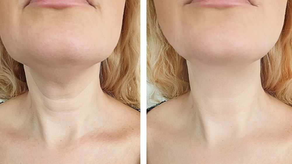 help-tackle-crepey-skin-and-neck-lines-with-this-powerful-firming-cream