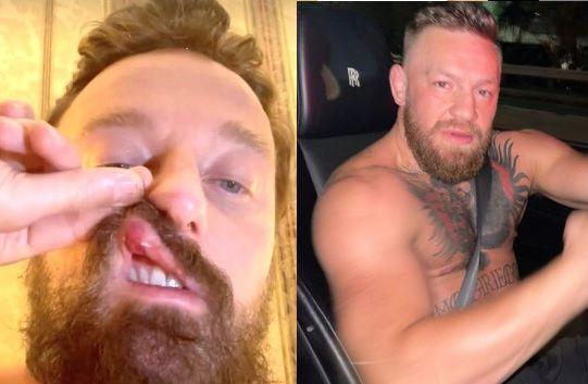 """Francesco Facchinetti picchiato da Conor McGregor: """"Vivo per miracolo, potevo morire"""""""